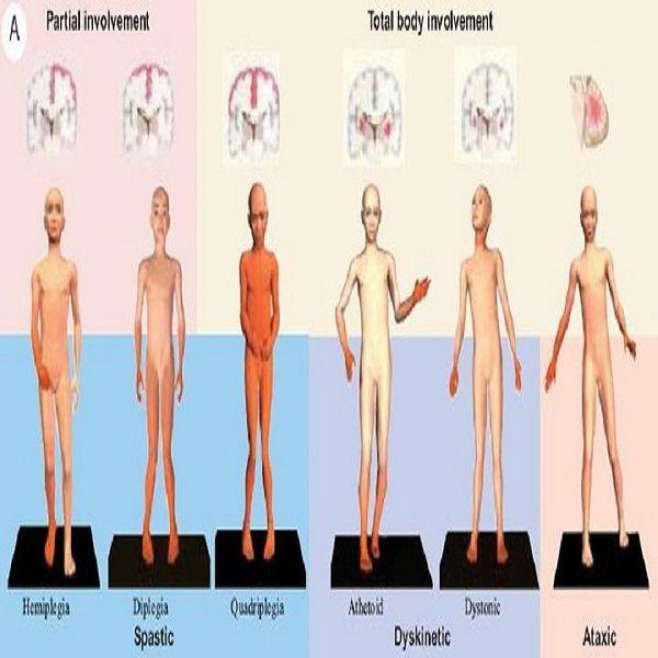 Ataksik Tip CP'de Rehabilitasyon Yaklaşımları